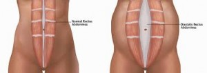 diastasis recti 3 moveforwardpt